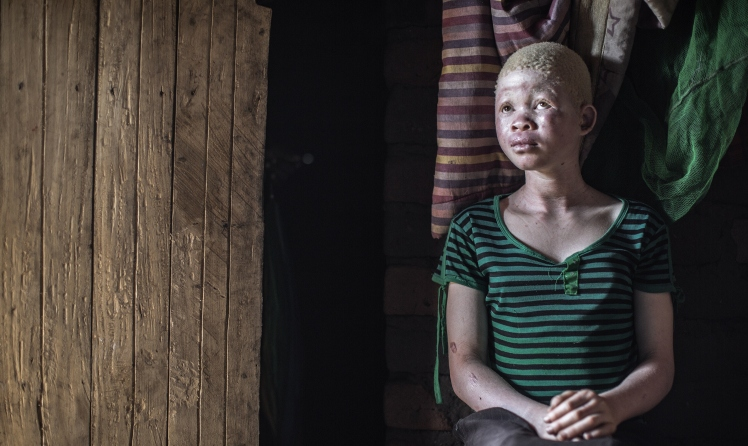 MALAWI-ALBINOS-FEATURE